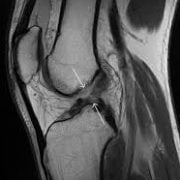 ACL - knee scan