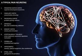 neurotag
